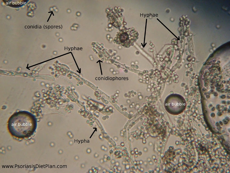 In this picture you can see the whole structure of fungus with spores. Magnification: 400X.