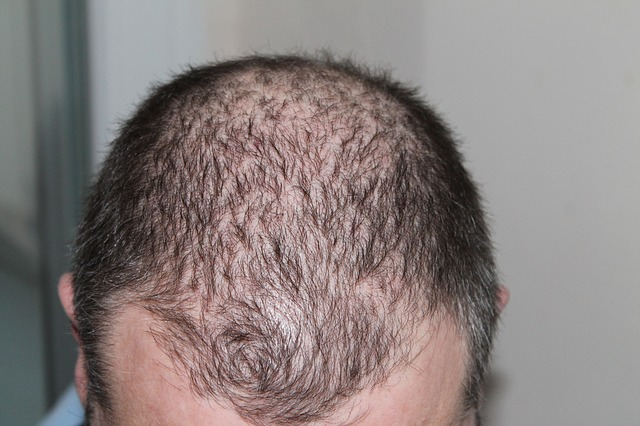Psoriasis and Hair Loss: What's the Connection? - Medical ...
