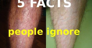 before_after_psoriasis