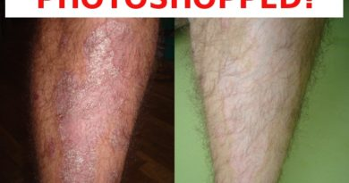 You didn't cure your psoriasis?