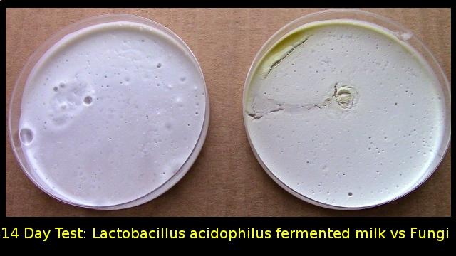 lactobacillus_milk_antifungal_psoriasis