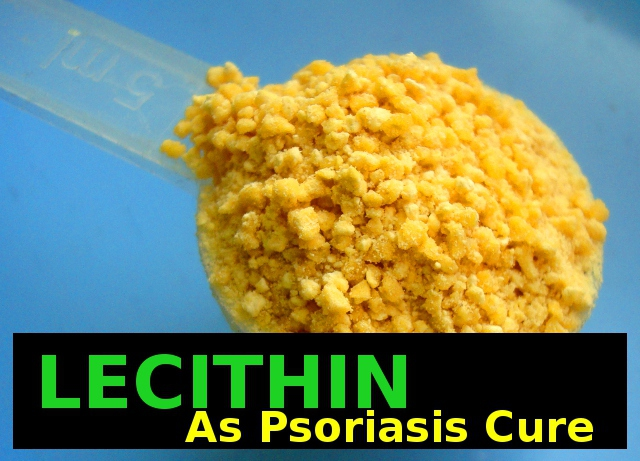 Lecithin cures psoriasis